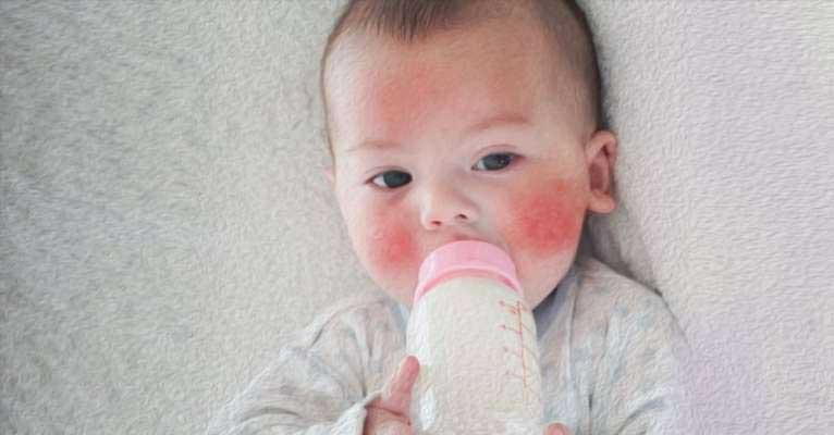 Tejfehérje allergiás vagy laktóz érzékeny babák